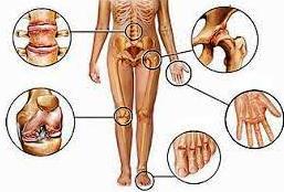 Причины заболевания или кого выбирает артроз