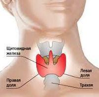 гонартроз 1 2 степени коленного сустава лечение
