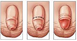 Разрезаный половой член
