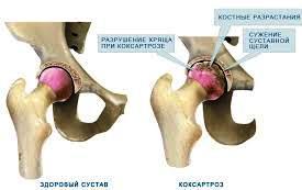 Эндометриоз в хряще тазобедренного сустава очень сильно болят ноги в каленках суставы тянет ходить тяжело