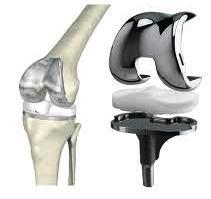 Сколько стоит имплонтант сустава колена боли в суставах при хроническом тонзиллите