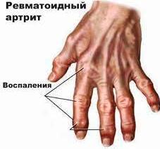Хроническое заболевание соединительной ткани суставов сила лошади гель для суставов