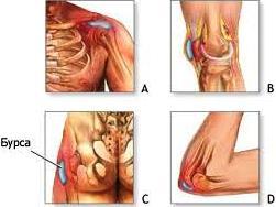 Лечение фиброза суставной сумки нарушение обмена веществ в хрящах и суставах у детей