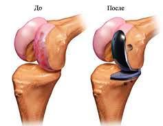 Частичное эндопротезирование коленного сустава хруст в коленном суставе у новорожденного
