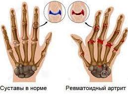 Изображение - Как лечат суставы в америке TreatmentinUS145